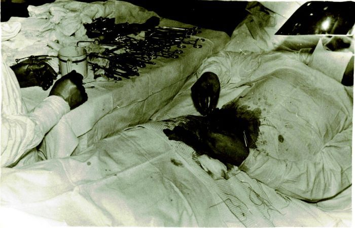 7-leonid-rogozov-kendi-apandisit-ameliyatini-yapan-adam