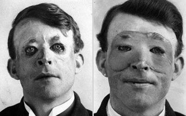 ilk-ileri-seviye-yuz-nakli-hastalarindan-walter-yeo-1917
