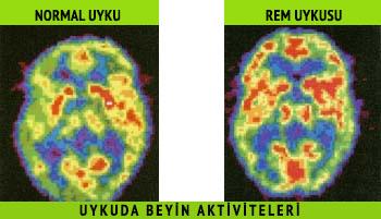 normal-uyku-rem-uykusu-uykuda-beyin-aktiviteleri