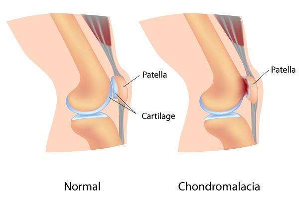 hastaliklar-Chondromalacia Patella