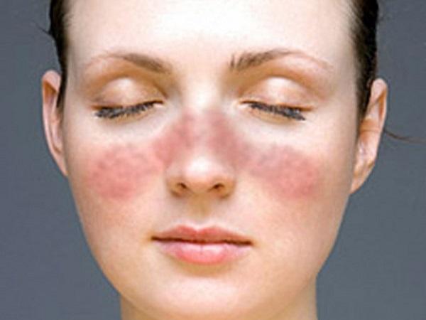 hastaliklar-webLupus_facial_rash