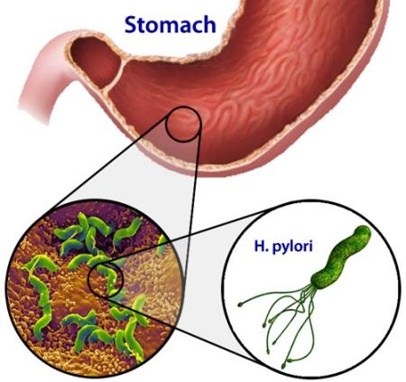 helikobakteri