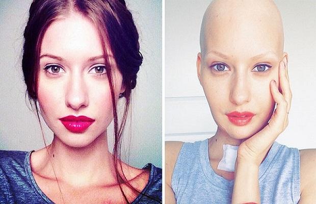 kanser-model-listelist
