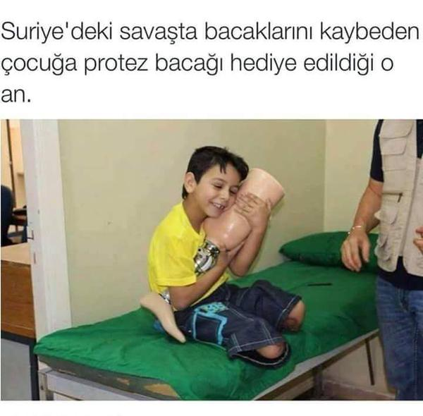 mutluluk-protez