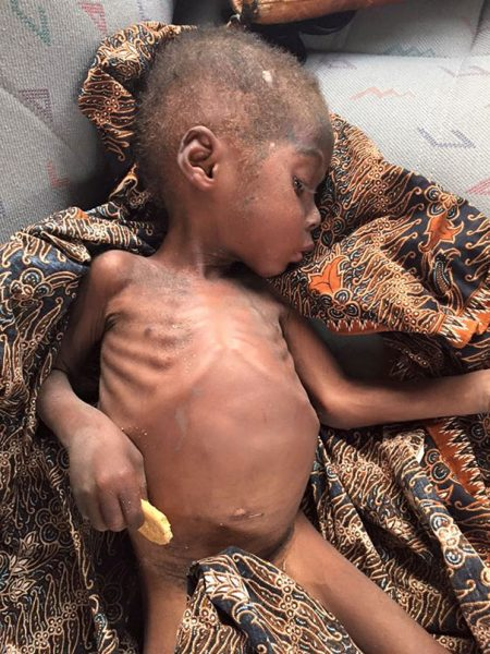 nigerian-witch-boy-starving-thirsty-recovery-anja-ringgren-loven-251