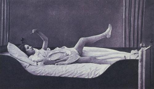 sizofreni-yatak