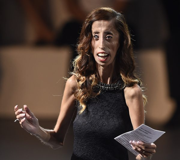 """US writer and motivational speaker Lizzie Velasquez delivers a speech during a conference at the National Auditorium in Mexico city, on September 5, 2014 in the framework of Telmex foundation's """"Mexico Siglo XXI"""" forum, owned by Mexican tycoon Carlos Slim. AFP PHOTO/RONALDO SCHEMIDT        (Photo credit should read RONALDO SCHEMIDT/AFP/Getty Images)"""