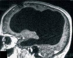 2-beyin
