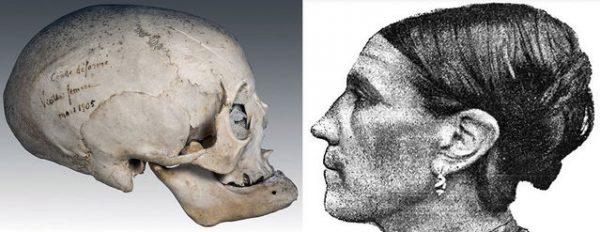 Cranial Deform Toulouse Combo