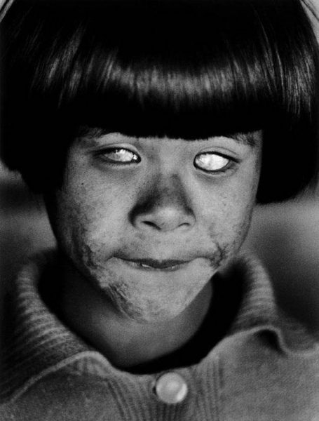 a-child-blinded-by-the-hiroshima-atomic-bomb-in-1945-photo-u1