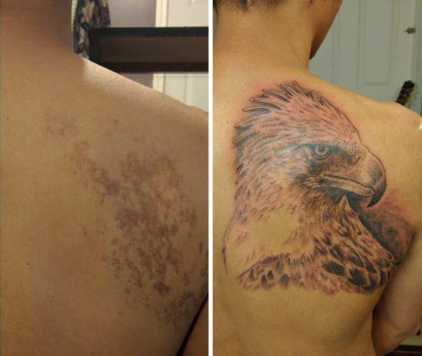 birthmark-tattoo-cover-ups-18-586bb3087bd33__605