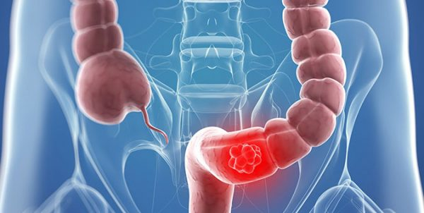 colon-cancer-kolon-mide