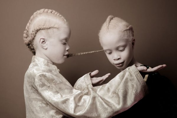 albino-twins-models-1-58e74afbccf94__880