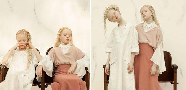 albino-twins-models-12-58e74b14e3be1__880
