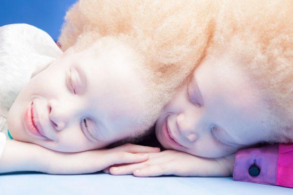 albino-twins-models-2-58e74afe0115f__880