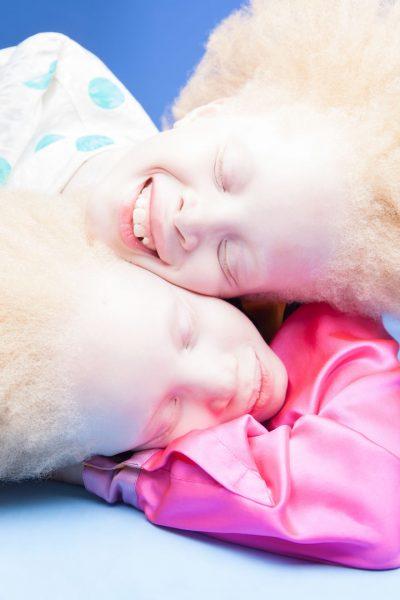 albino-twins-models-5-58e74b02ae042__880