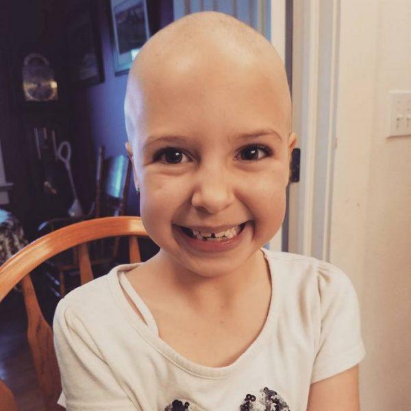 girl-alopecia-crazy-hair-day-gianessa-wride-9