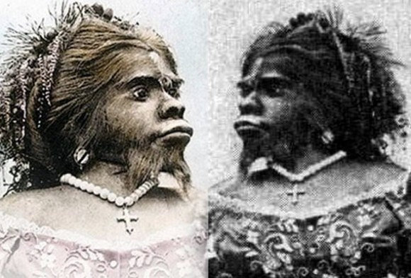 remembering-julia-pastrana-the-ape-woman