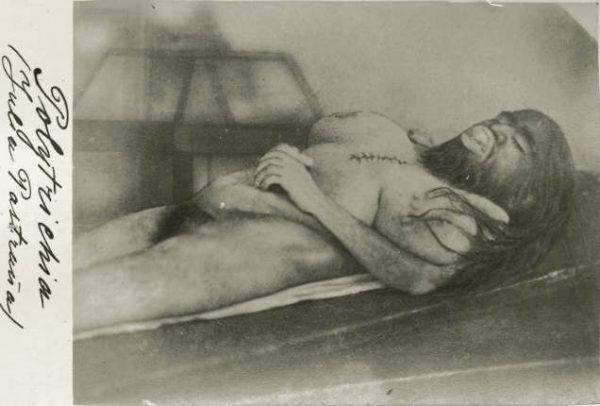 ugliest-people-julia-pastrana-dead