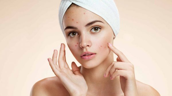 acne-natural-facial-masks-diy-problem-skin
