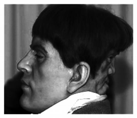 edward-mondrake-el-hombre-de-dos caras en la cabeza