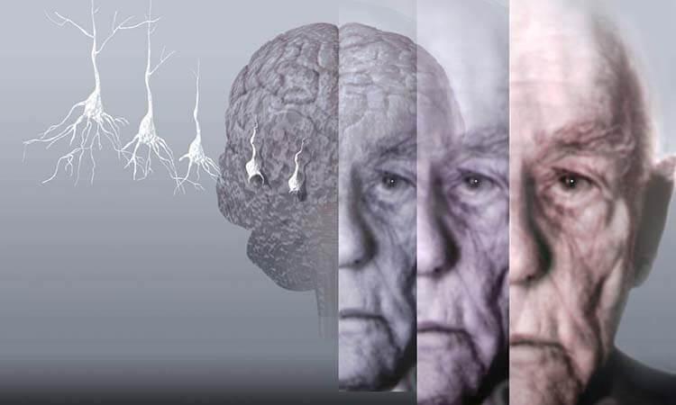 Demans Alzeimer Unutkanlık arasındaki farklar