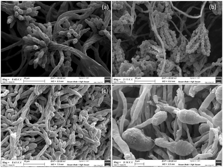 Asırlık Tabloları Yok Edici Bakteriler