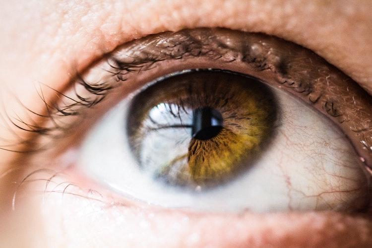 gözünde arı yaşayan kadın