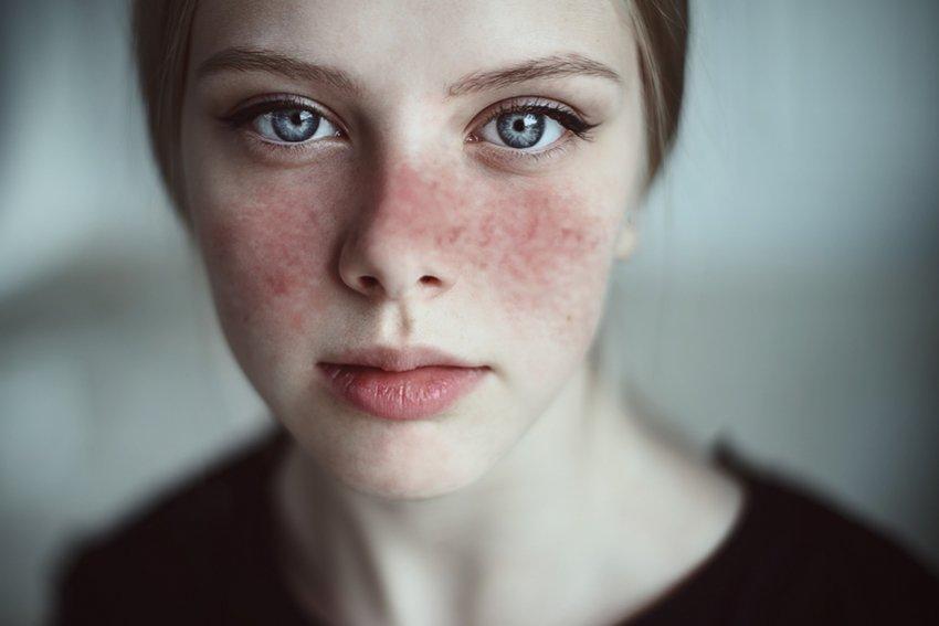 benzer belirtileri olan hastalıklar