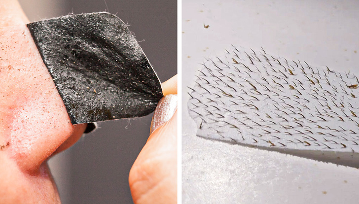 Siyah nokta derinlemesine temizlik