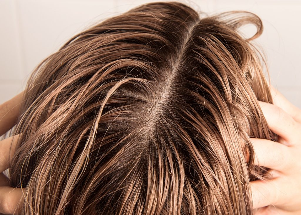 yağlı saçlar için şampuan