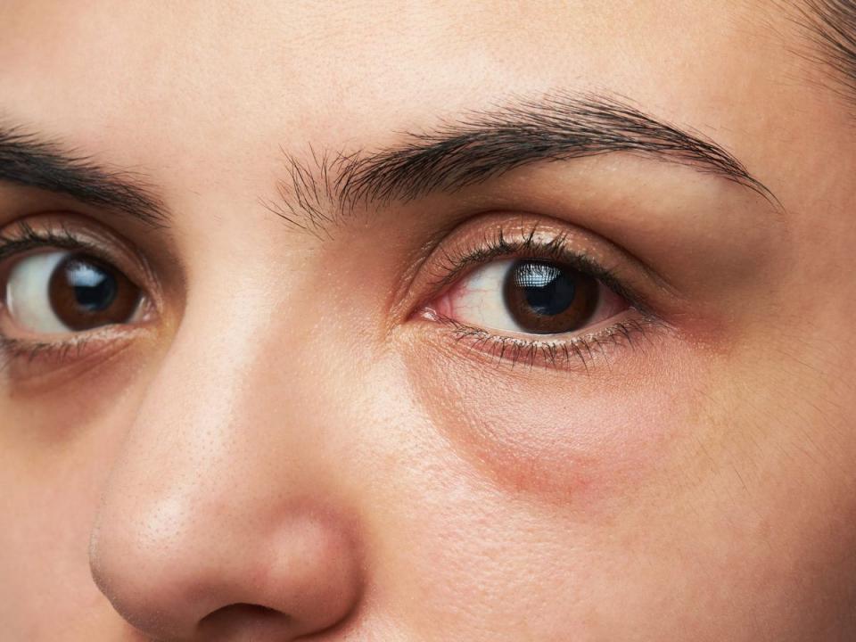 göz altı morluğu krem önerileri