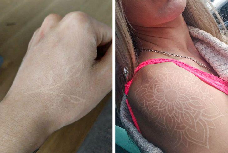 beyaz dövme