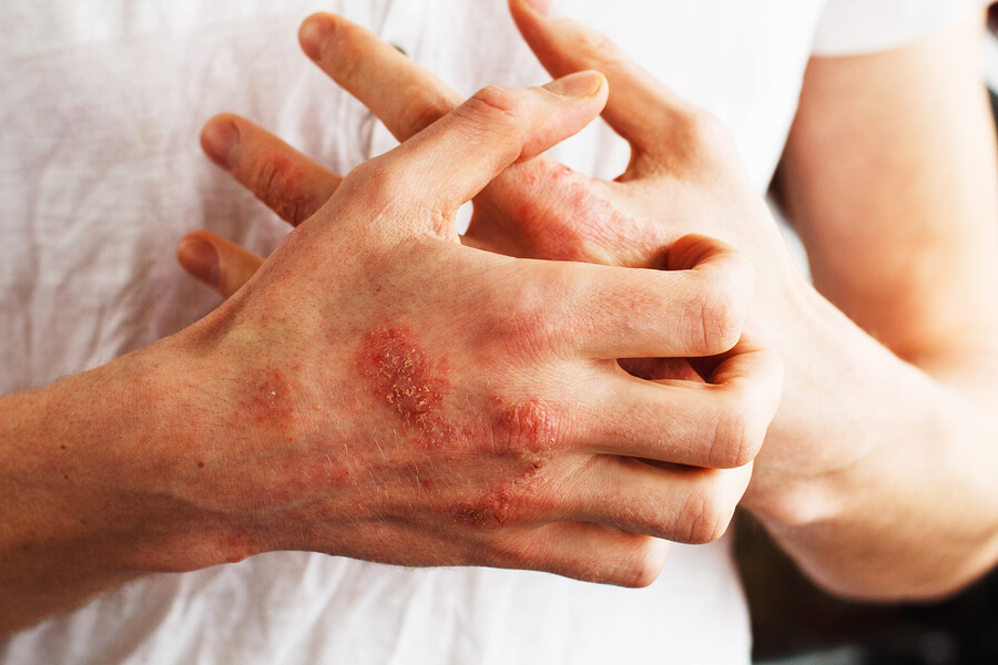 morgellon hastalığı