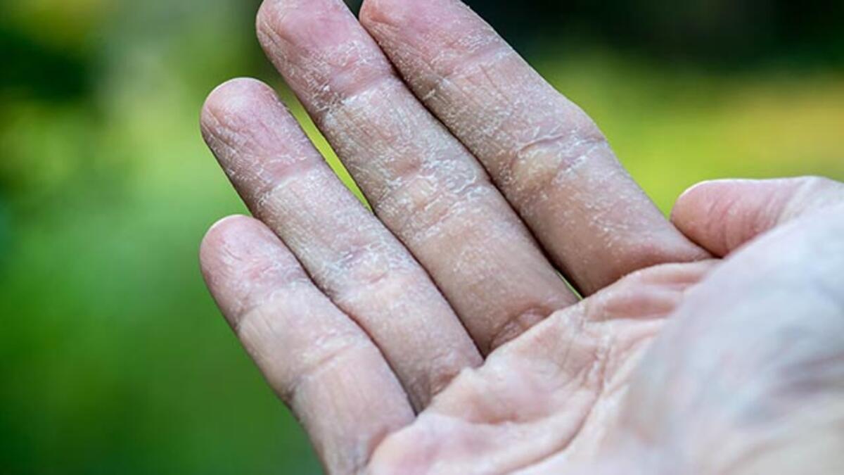 Çatlamış eller